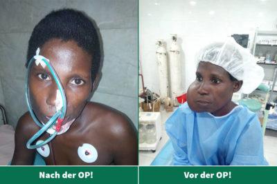 Operation von Leas Mama erfolgreich